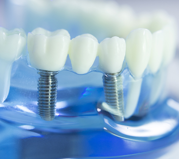 Centerville Dental Implants